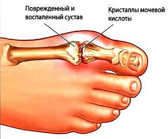 Виды полиартрита ног