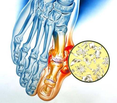 Лечение полиартрита ног