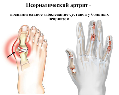 Псориатический вид артрита