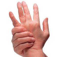 признаки острого течения ревматического полиартрита