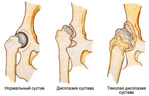 Симптомы вывиха тазобедренного сустава