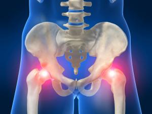 Неподвижность тазобедренного сустава