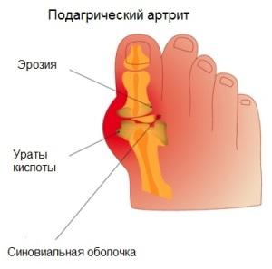 Полиартрит подагрический