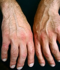Проявление реактивного полиартрита
