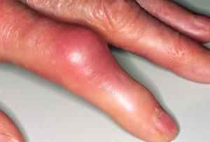 Симптоматика подагрического полиартрита