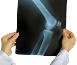 diagnostika-kolennogo-sustava