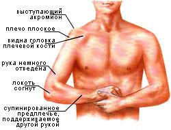 Вид вывиха плечевого сустава
