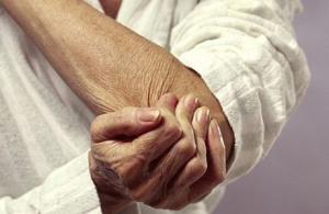 Признаки псориатического полиартрита
