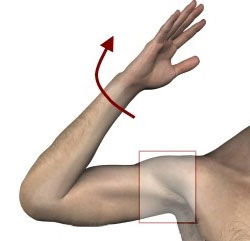 Восстановление плеча при вывихе