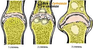 Степени остеоартроза