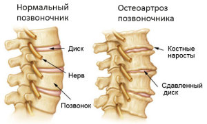 Клиника патологии остеоартроза позвоночного столба