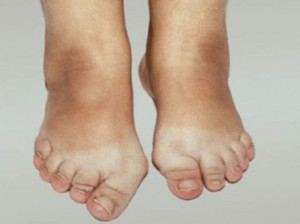Симптоматика остеоартроза стопы