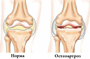 Клиника остеоартроза коленного сустава