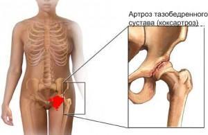 Специфика лечения остеоартроза тазобедренного сустава