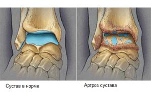 Поражение голеностопного сустава остеоартрозом