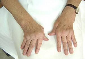 Симптоматика остеоартроза кистей рук