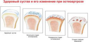Стадтт развития деформирующего остеоартроза