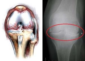 Сустав при деформирующем остеоартрозе