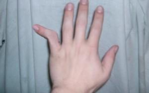 Травмирование пальца руки, вывих сустава