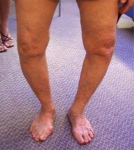 deformirujushhij-osteoartroz