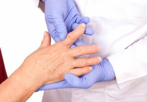 Тактики лечения при остеоартрозе пальцев рук